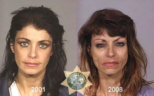 Anti-drug campaign shows facial harm